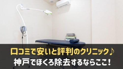 神戸でほくろ除去がおすすめのクリニック